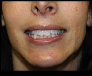 Botox® Before and After Pictures Pittsburgh, PA