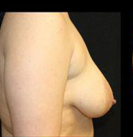 Breast Lift Before and After Pictures Pittsburgh, PA