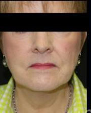 Facelift Before and After Pictures Pittsburgh, PA