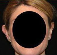 Otoplasty Before and After Pictures Pittsburgh, PA