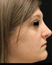Rhinoplasty Before and After Pictures Pittsburgh, PA