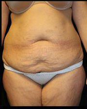 Tummy Tuck Before and After Pictures Pittsburgh, PA